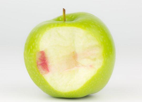 parodontite-dentalfeel