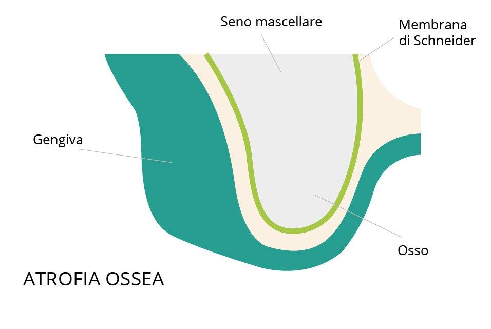 rialzo seno mascellare atrofia ossea