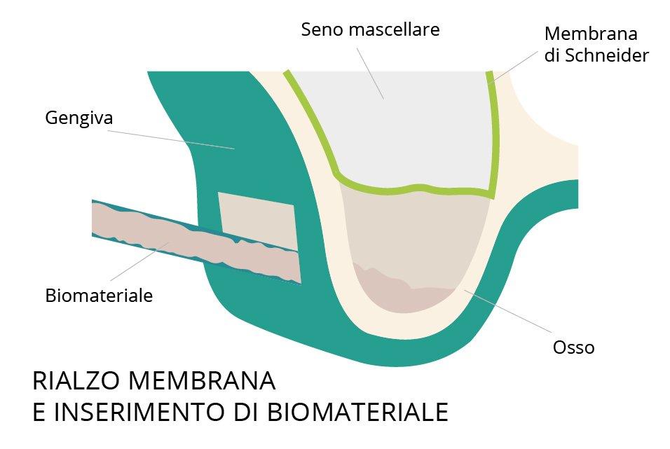 rialzo seno mascellare membrana