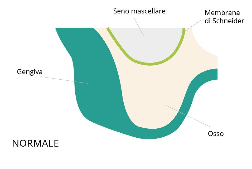 rialzo seno mascellare