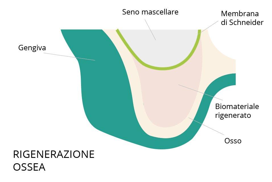 rialzo seno mascellare rigenerazione ossea