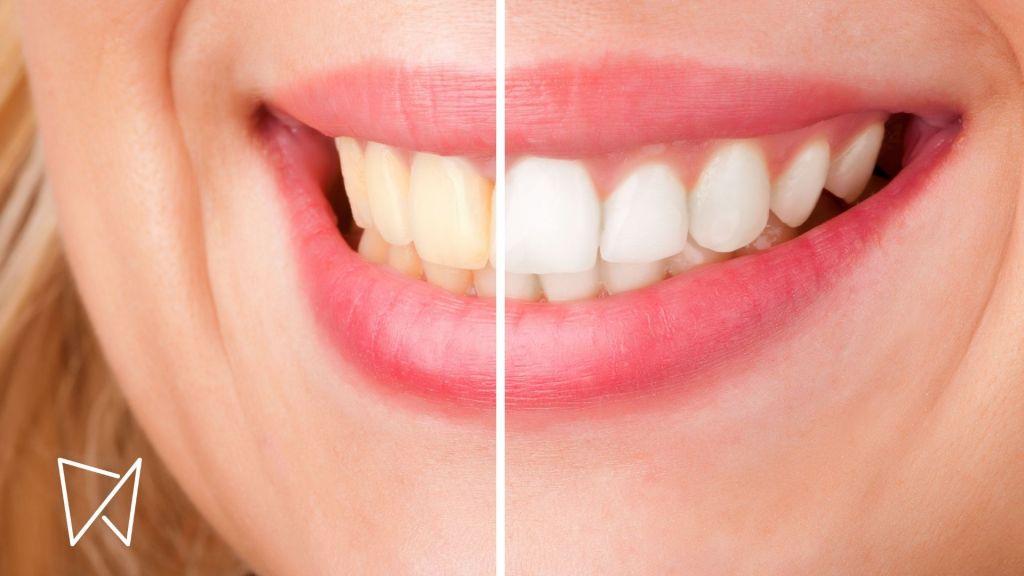 sbiancamento dental dental feel
